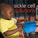 Washington University Develops New Treatment for Sickle Cell Disease