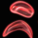 University Researchers Make a Breakthrough in Finding a Cure for Sickle Cell Disease